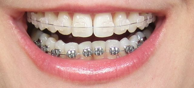invisibleBraces