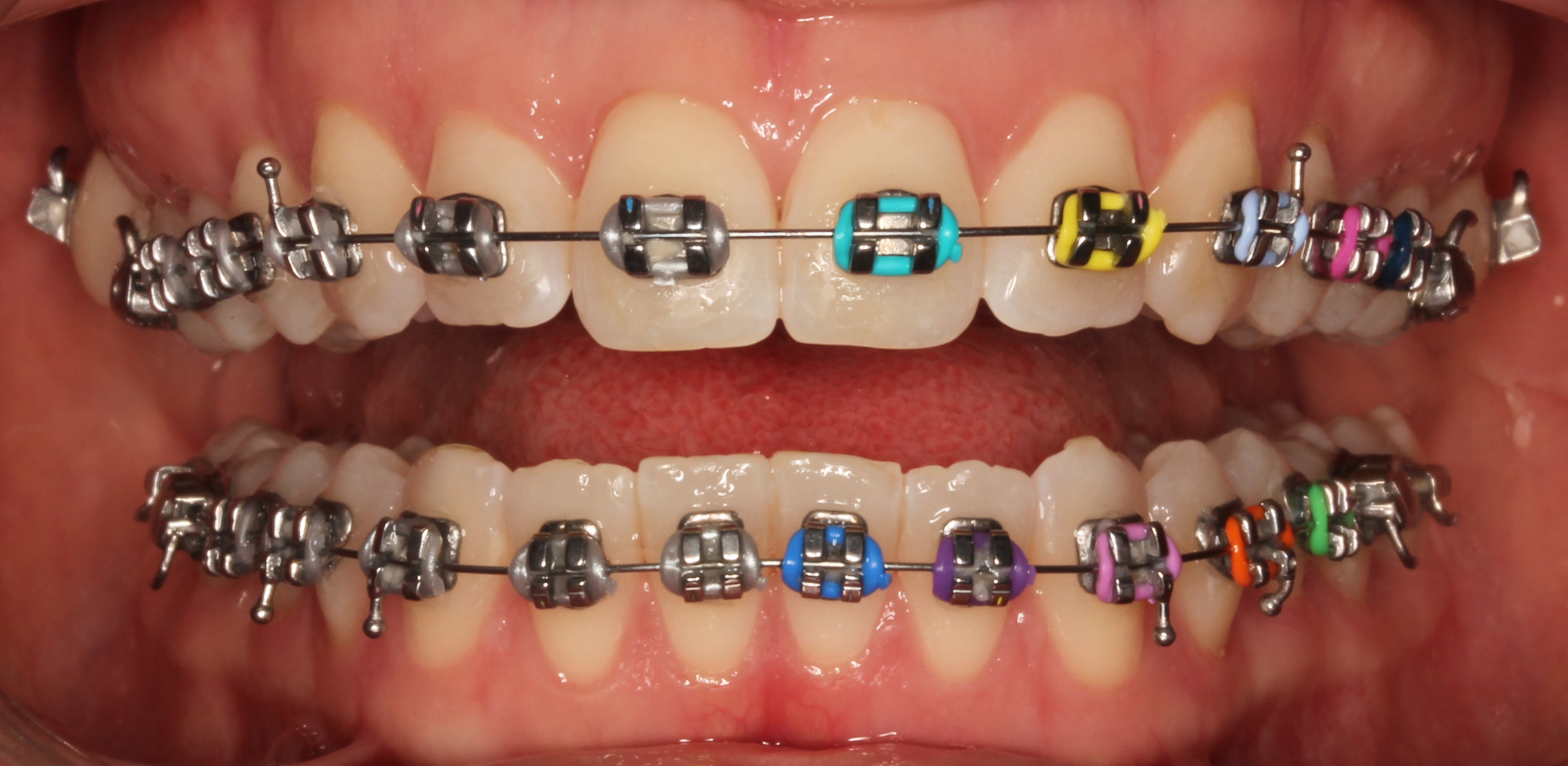 metalBraces